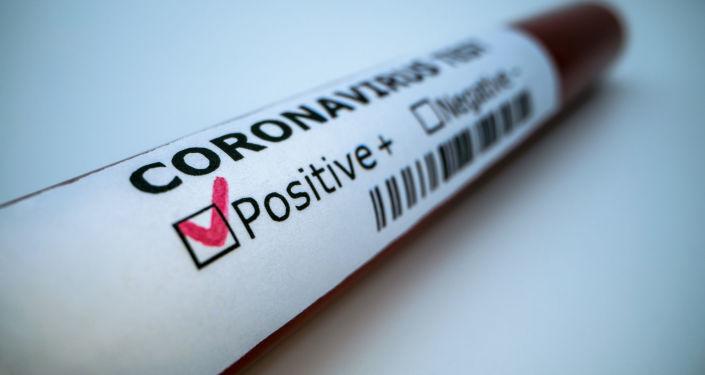 Анализ на коронавирус